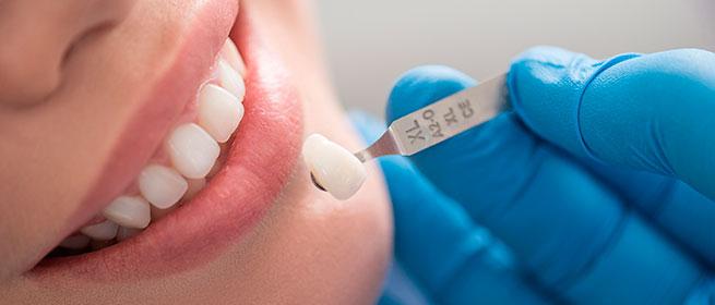 O que é lente de contato dental?