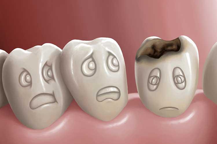 Cárie dental: 10 curiosidades que você precisa saber sobre a doença bucal