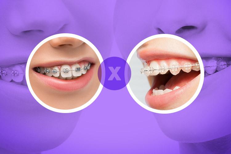 Aparelho metálico X estético: quais as diferenças e qual escolher?