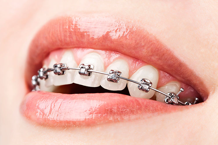 teeth-with-braces-edit