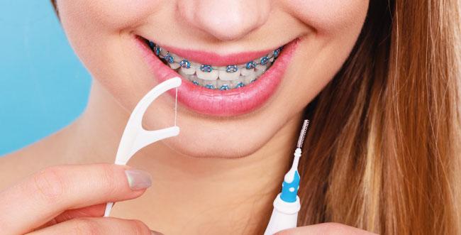Tenha muita atenção com a higiene bucal!
