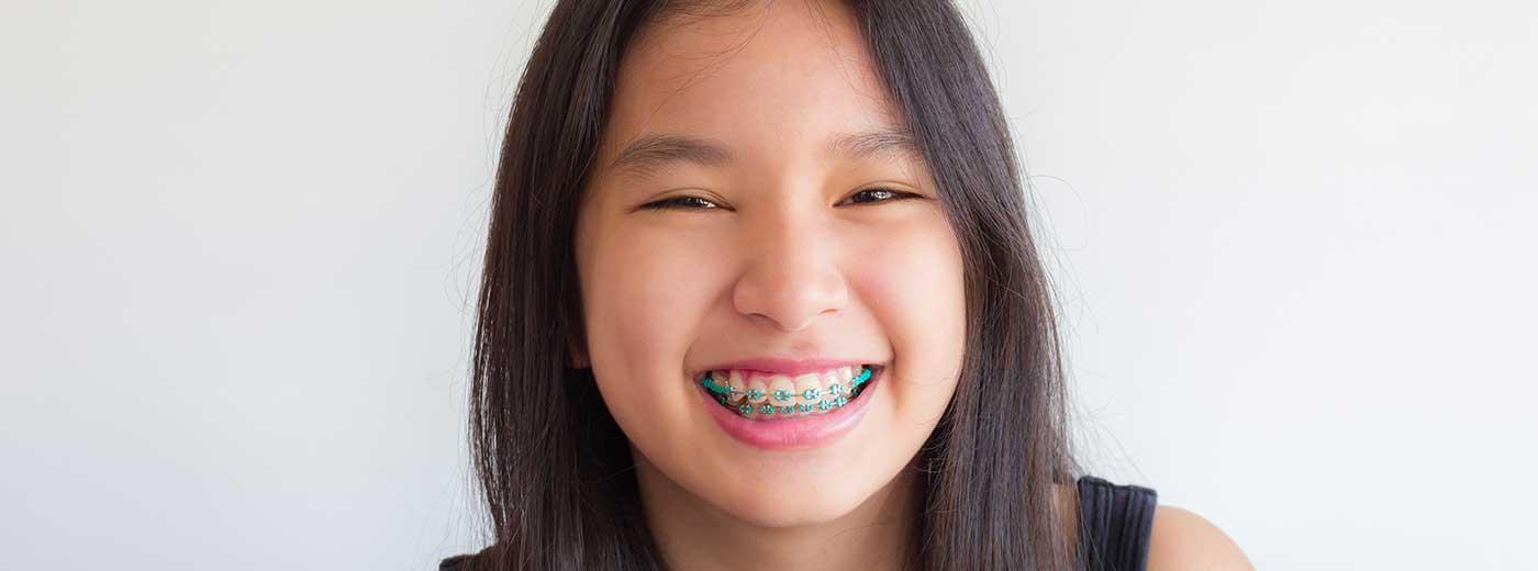 Saúde bucal: confira 15 hábitos saudáveis para começar em 2019 - sorriso alinhado