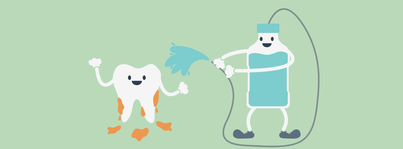 Tártaro nos dentes: o que é e como tratar o problema?