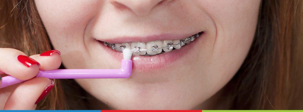 Vantagens e desvantagens: conheça 4 tipos de escova de dentes