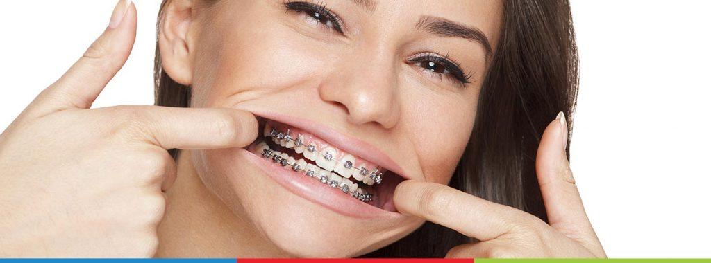 Aparelho Ortodôntico Autoligado: 5 benefícios para sua boca