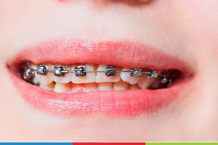 Aparelho Ortodôntico Autoligado: 6 benefícios para sua boca