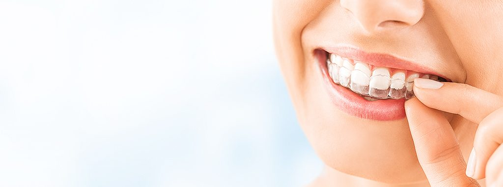 https://www.shutterstock.com/pt/image-photo/clear-dental-teeth-retainer-brackets-straighten-1424838317