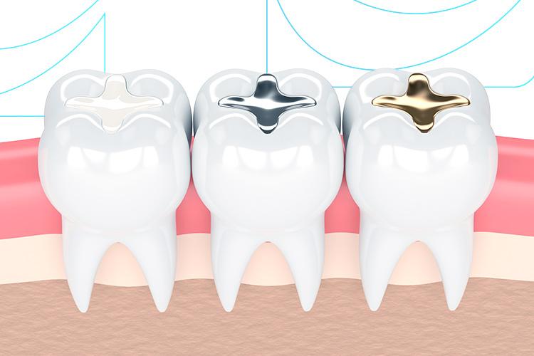 Qual tipo de restauração dental mais se encaixa no seu caso?