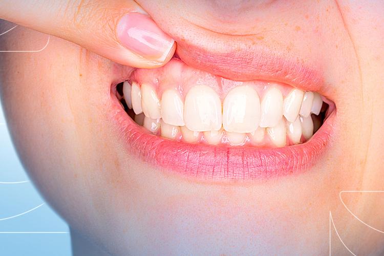 Saúde bucal: 6 problemas que afetam a sua gengiva pela má higiene