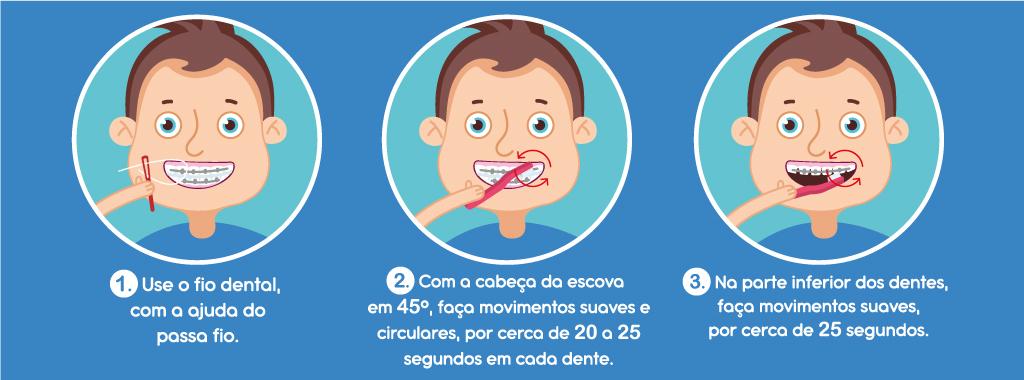 https://www.redeodonto.com.br/blog/wp-content/uploads/2020/02/como-fazer-a-escova%C3%A7%C3%A3o-do-aparelho-ortodontico-2.jpg
