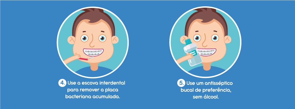 https://www.redeodonto.com.br/blog/wp-content/uploads/2020/02/como-fazer-a-escova%C3%A7%C3%A3o-do-aparelho-ortodontico.jpg