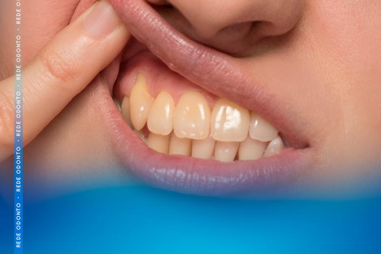 Conheça os 7 motivos que deixam os dentes amarelados e como tratar